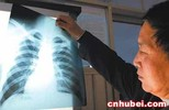 Medical X Ray Film,Radiography,Mri Equipment,X Ray Machine