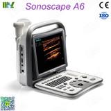 Sonoscape ultrasound sonoscape a6 price: ultrasound machine