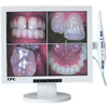 17 inch LCD Monitor with Built In Intraoral Camera wired