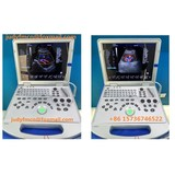 Full Digital Ultrasound 3D 4D Color Doppler