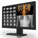 KTC medical monitor Integrated display